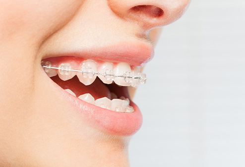 Clear aligners in Weatherford, TX