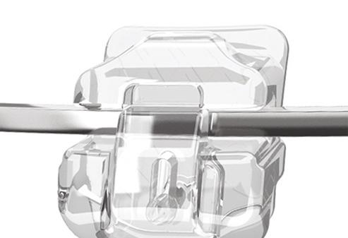 Clear braces bracket