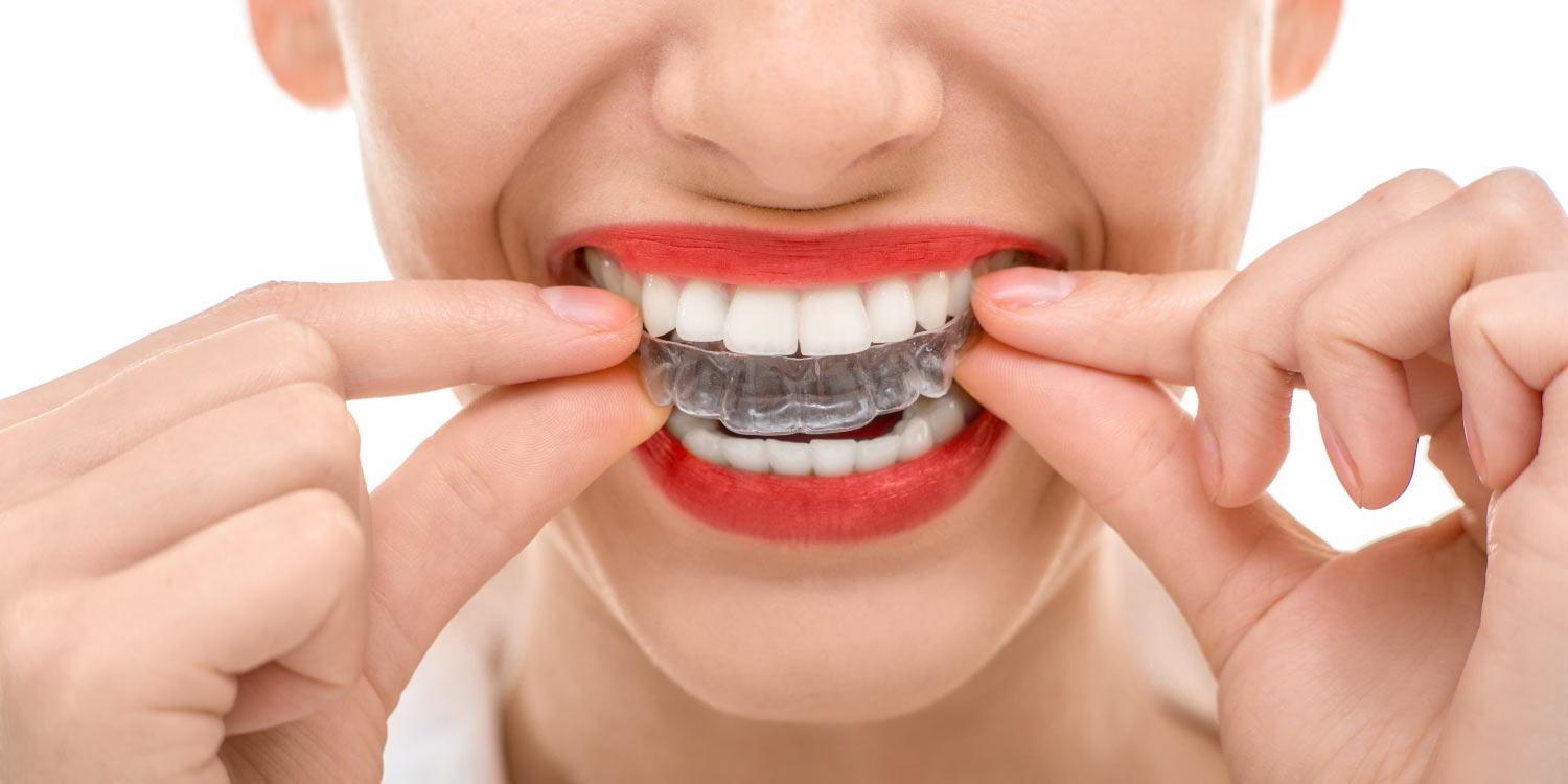 Closeup of woman putting in her Invisalign aligners while wearing red lipstick in Weatherford, TX