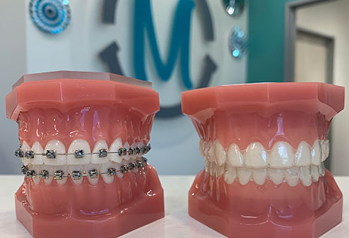 Photo of different braces impressions