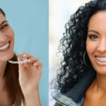 Two women, one with Invisalign clear aligners and the other wearing braces, which have different cleaning techniques