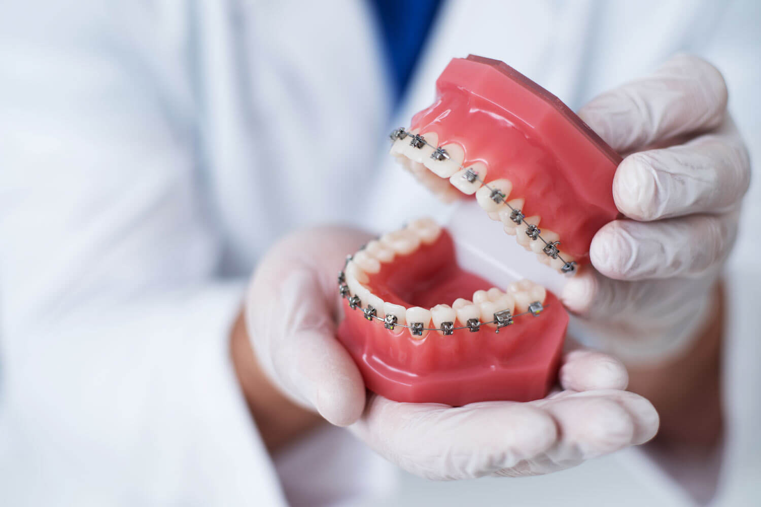 Closeup of an orthodontist with gloved hands holding a mouth of fake teeth with braces